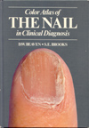 Color Atlas of the Nail in Clinical Diagnosis (1996).