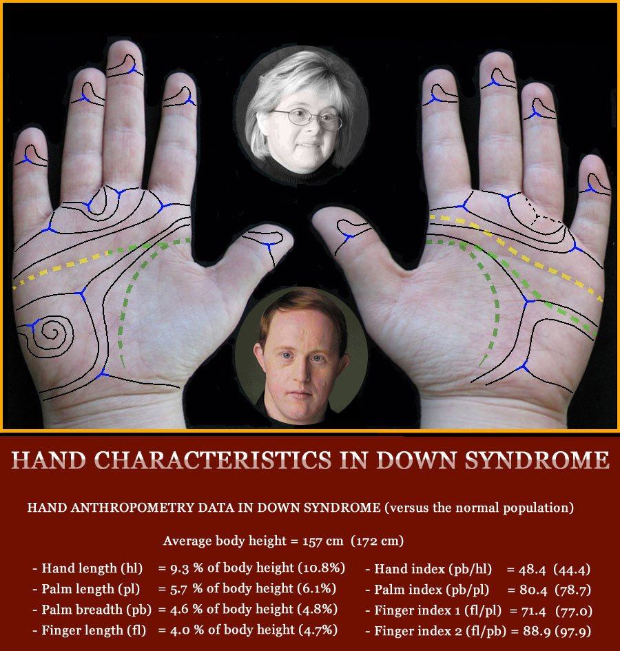 The hand in Down syndrome - multi-perspective palm reading.