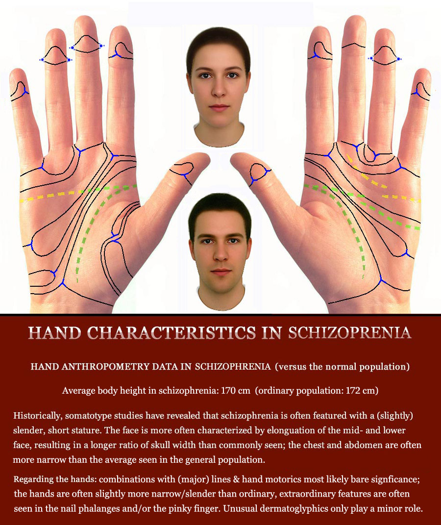 Schizophrenia & the hand: multi-perspective palm reading.