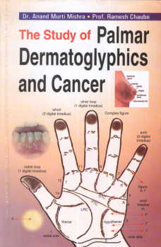 The Study of Palmar Dermatoglyphics and Cancer.